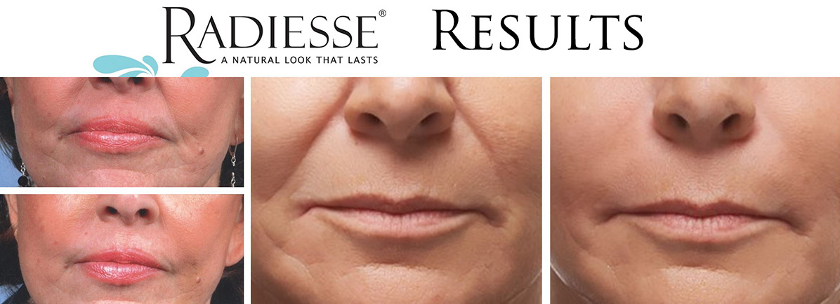 coastal-valley-dermatology-carmel-radiesse-volume-injectable-photo