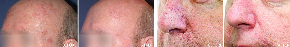 coastal-valley-dermatology-carmel-redness-broken-blood-vessels-treatment-photo