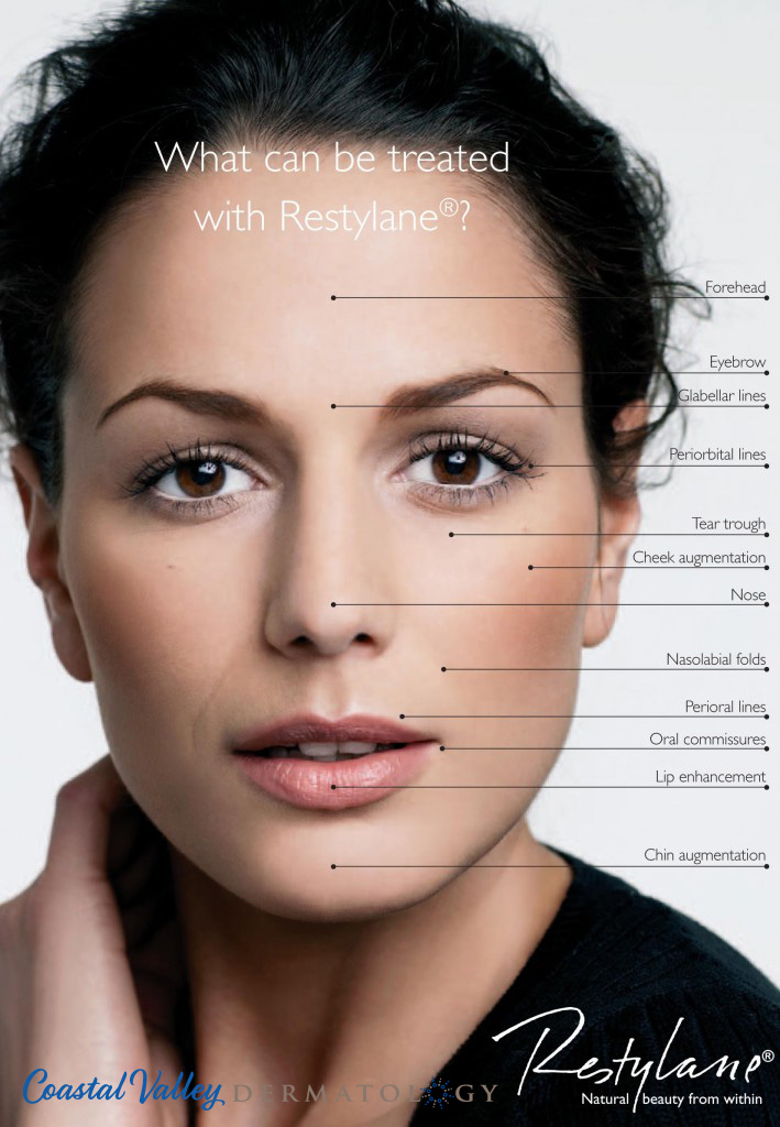 coastal-valley-dermatology-carmel-restylane-filler-injectable-photo