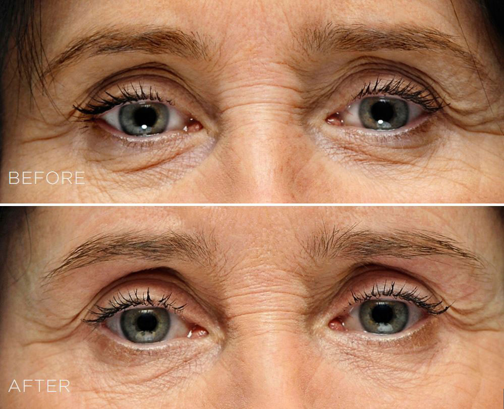 coastal-valley-dermatology-carmel-restylane-under-eyes-circles-photo