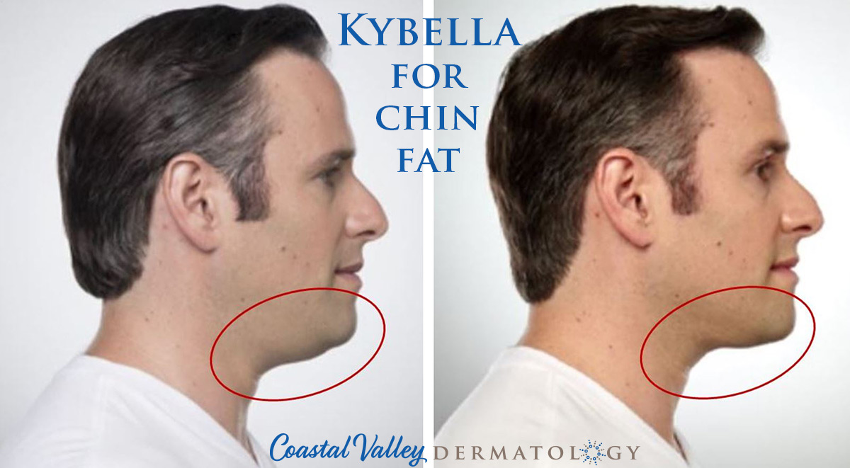 coastal-valley-dermatology-carmel-ultherapy-male-chin-fat-treatment-photo