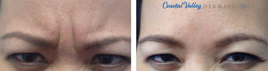 coastal-valley-dermatology-carmel-xeomin-frown-lines-treatment-photo