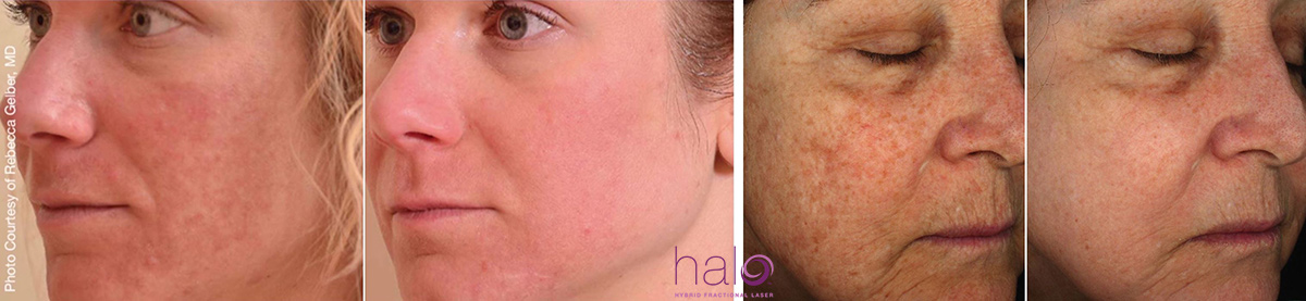 coastal-valley-dermatology-halo-laser-before-after-photo