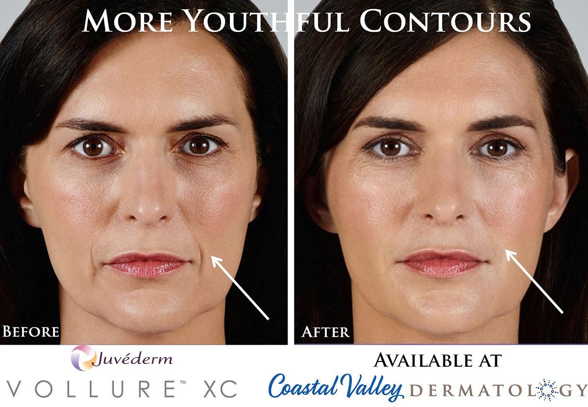 coastal-valley-dermatology-carmel-vollure-xc-juvederm-photo