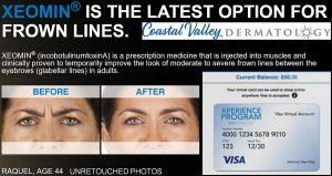 coastal-valley-dermatology-carmel-xeomin-xperience-rewards-program-photo