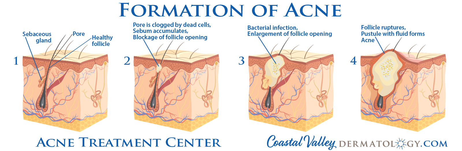 coastal-valley-dermatology-carmel-formation-of-acne-photo