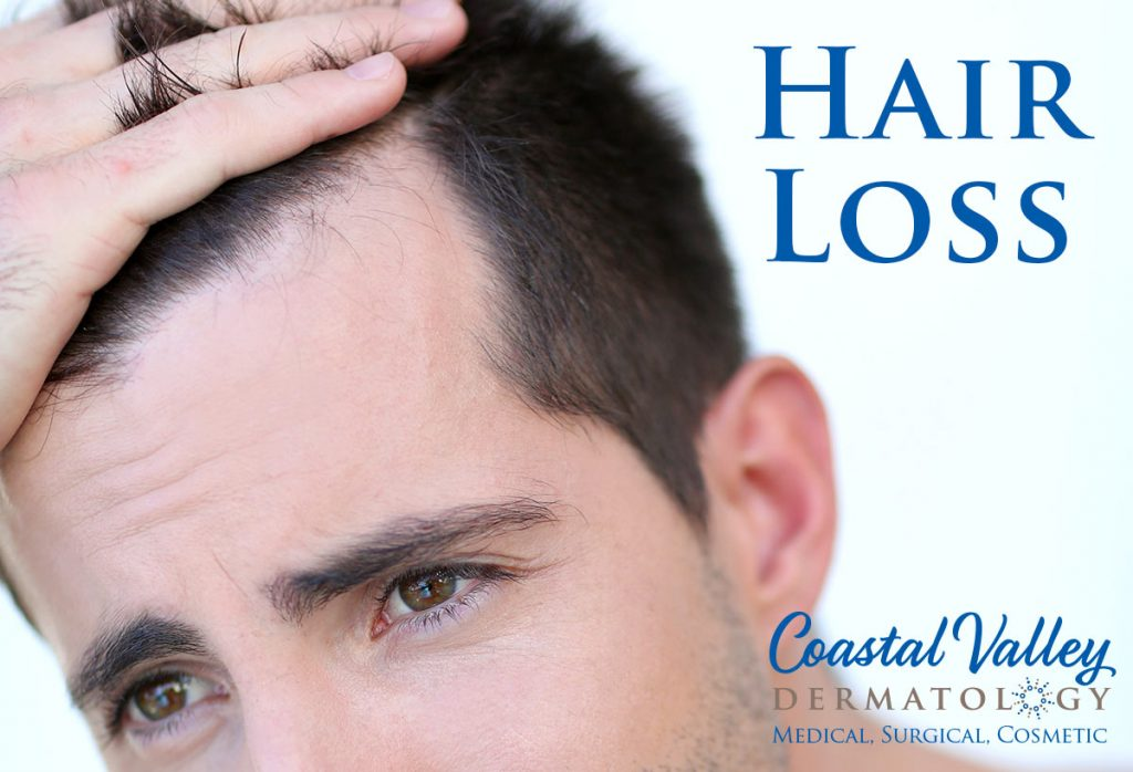 coastal-valley-dermatology-carmel-hair-loss-men-photo