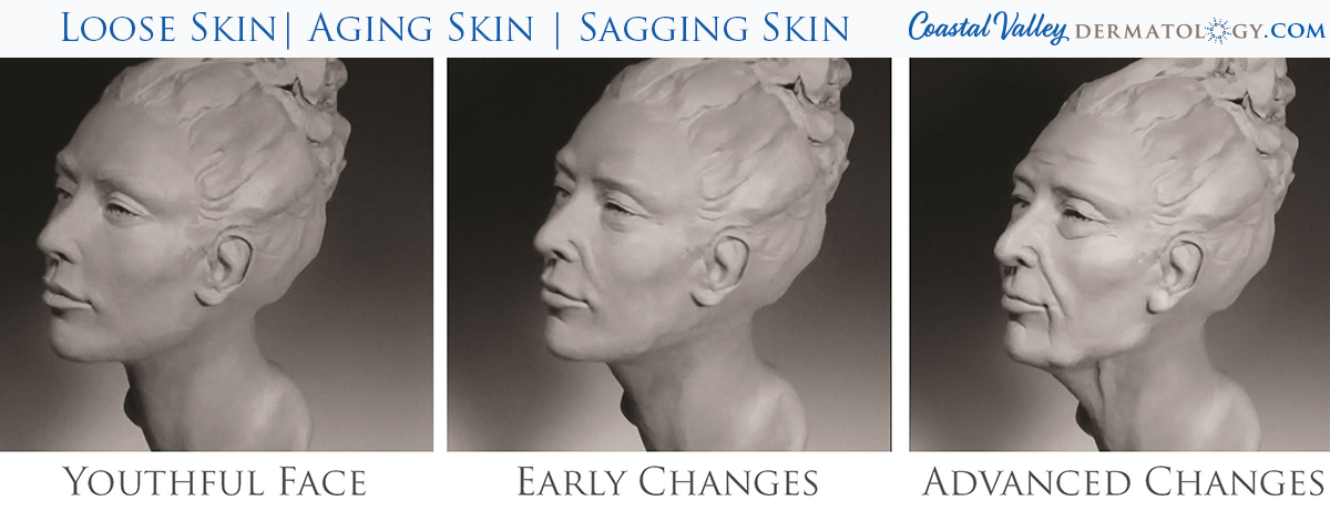coastal-valley-dermatology-carmel-loose-skin-aging-photo