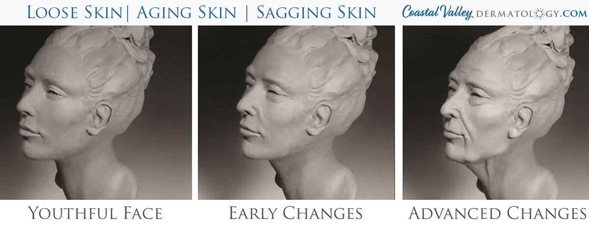 coastal-valley-dermatology-carmel-loose-skin-aging-photo