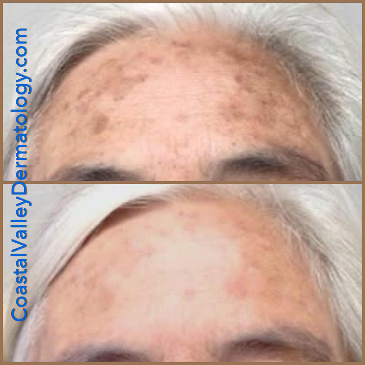 coastal-valley-dermatology-carmel-bbl-before-after-photo