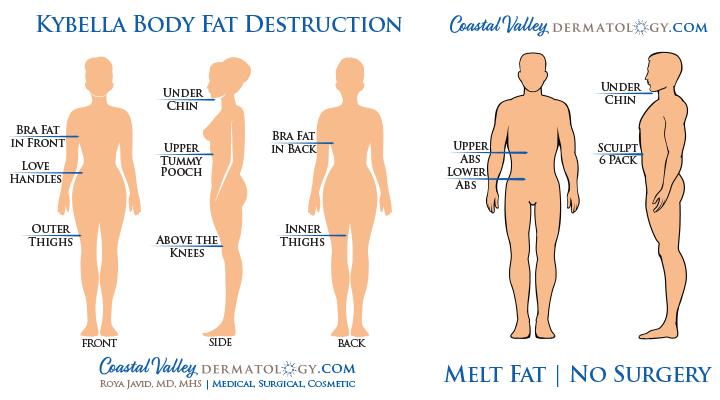Kybella Body Injections Dissolve Small Stubborn Fat