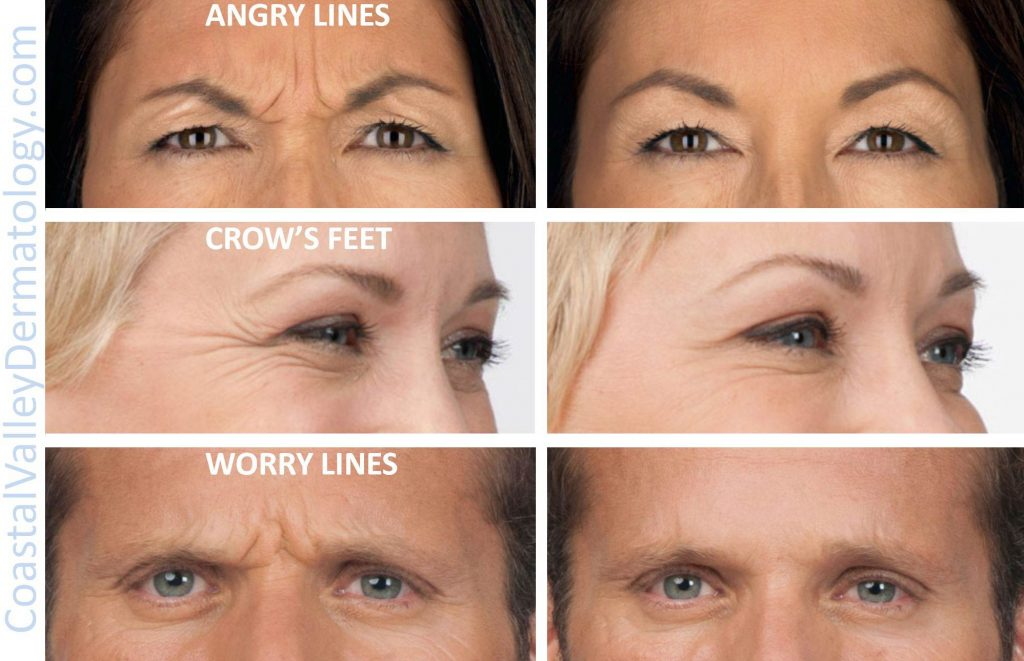 coastal-valley-dermatology-angry-worry-lines-photo