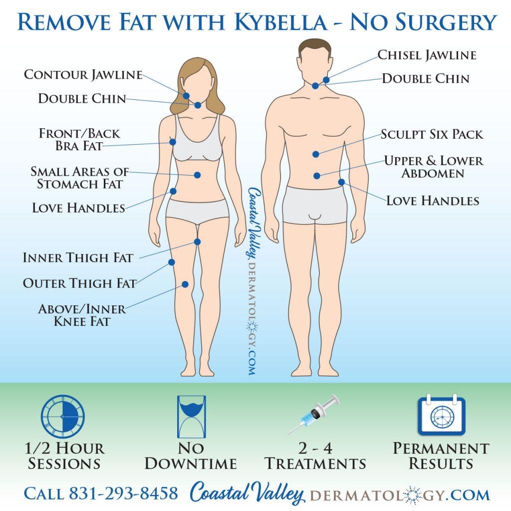 coastal-valley-dermatology-kybella-body-fat-removal-photo