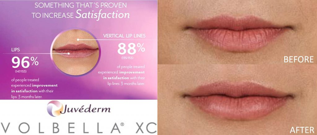 coastal-valley-dermatology-monterey-volbella-lip-enhancement-photo