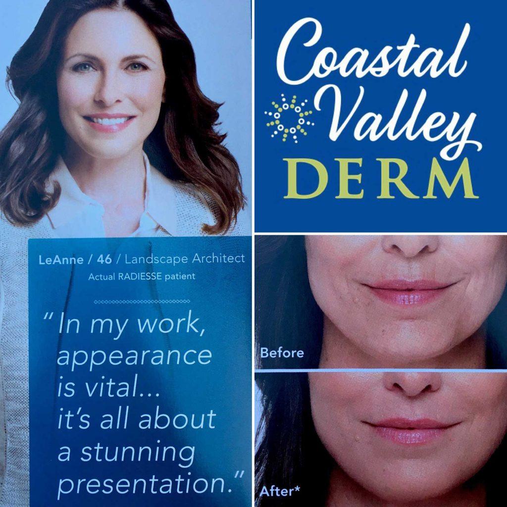 coastal-valley-dermatology-monterey-radiesse-volumizing-filler-photo