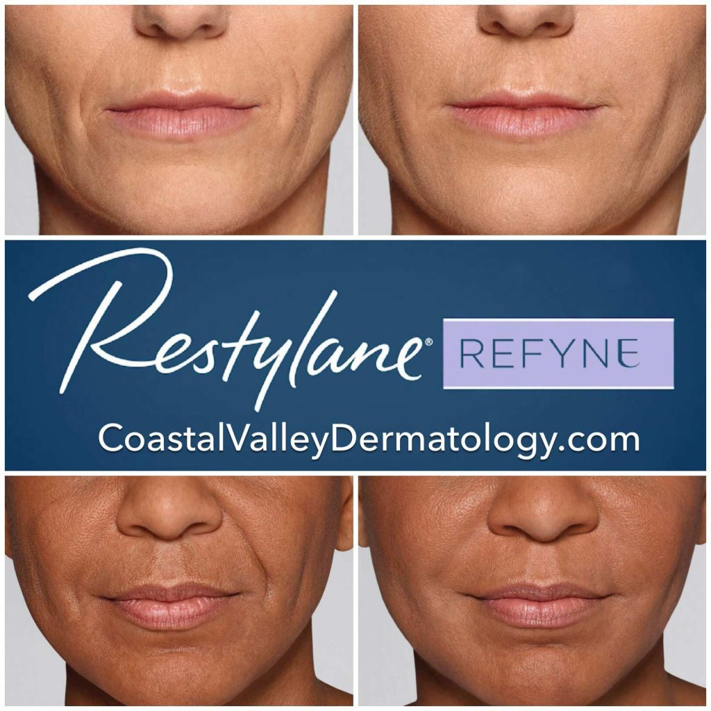 coastal-valley-dermatology-monterey-restylane-refyne-photo