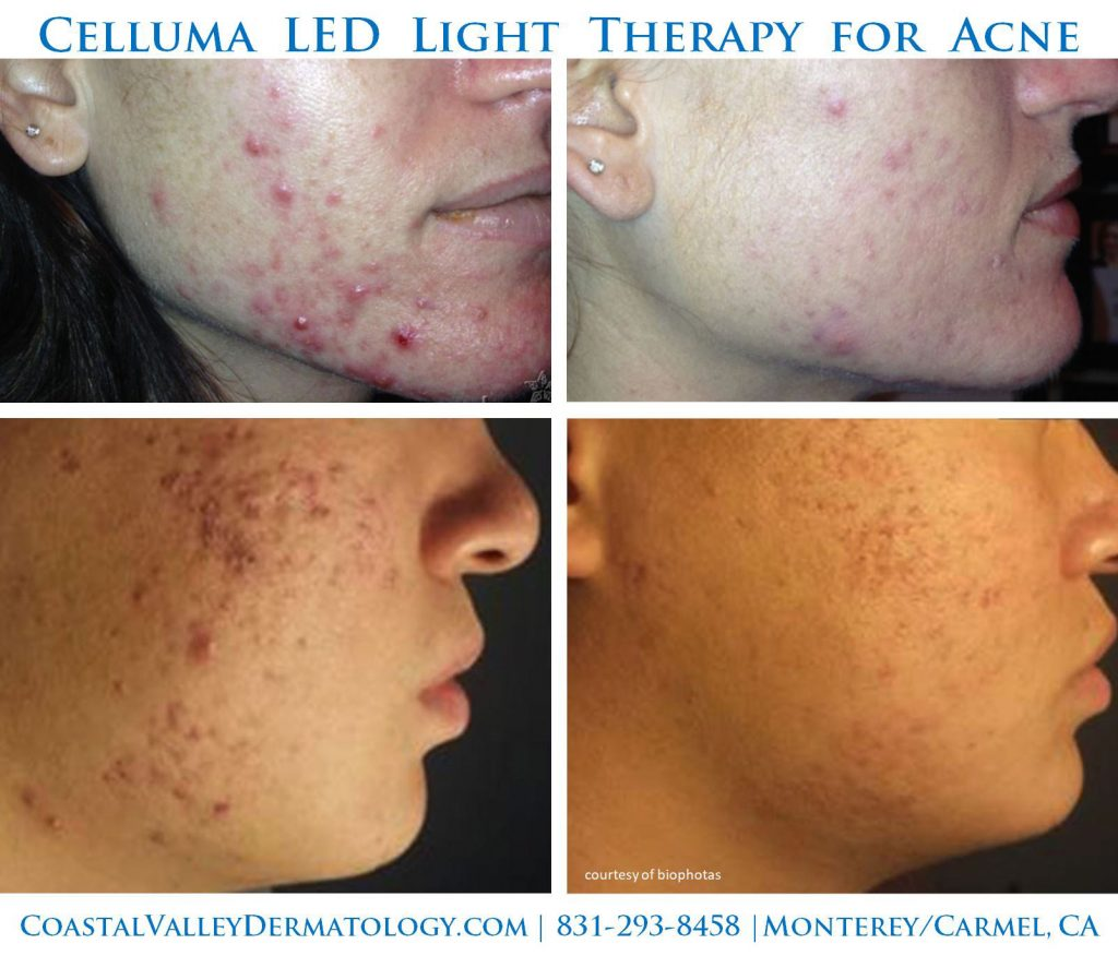 coastal-valley-dermatology-monterey-celluma-acne-photo
