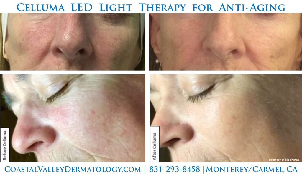 coastal-valley-dermatology-monterey-celluma-anti-aging-photo