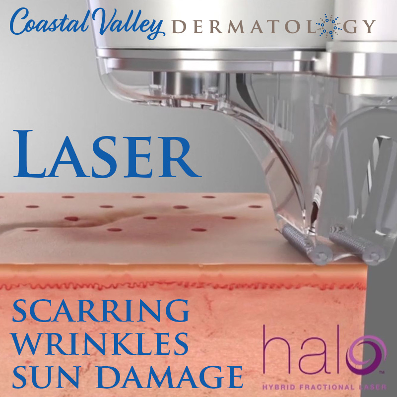 coastal-valley-dermatology-carmel-laser-wrinkles-scarring-photo