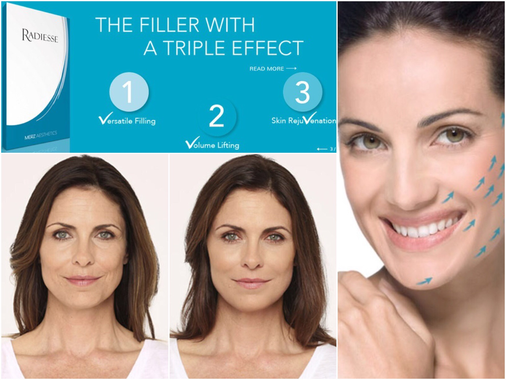 coastal-valley-dermatology-monterey-radiesse-filler-contour-photo