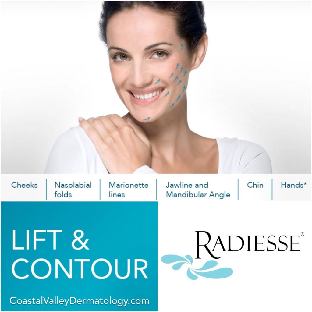 coastal-valley-dermatology-monterey-radiesse-lift-filler-photo