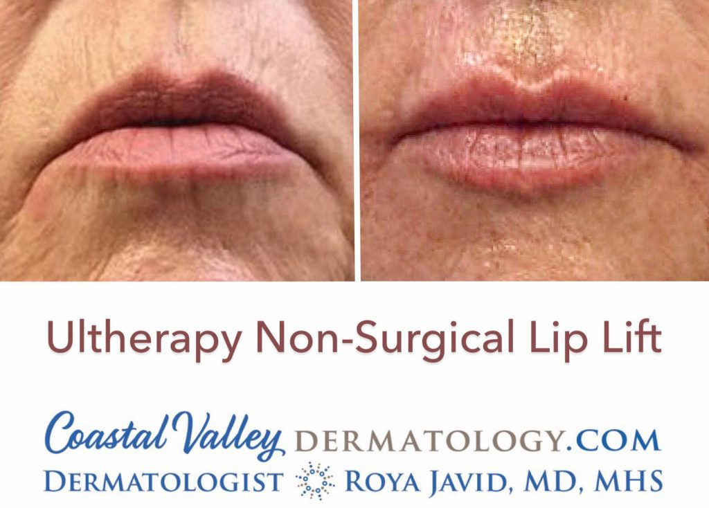 coastal-valley-dermatology-monterey-ultherapy-lip-lift-photo