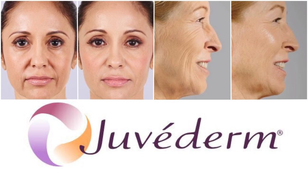 coastal-valley-dermatology-monterey-juvederm-results2-photo