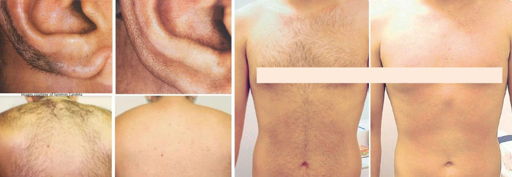 coastal-valley-dermatology-carmel-hair-laser-removal-men-areas-photo