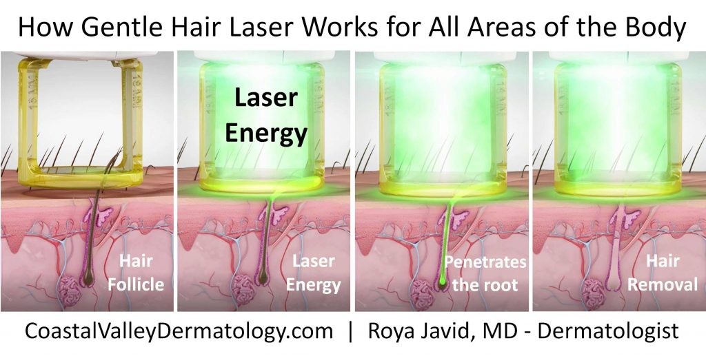 coastal-valley-dermatology-monterey-how-hair-laser-works-photo
