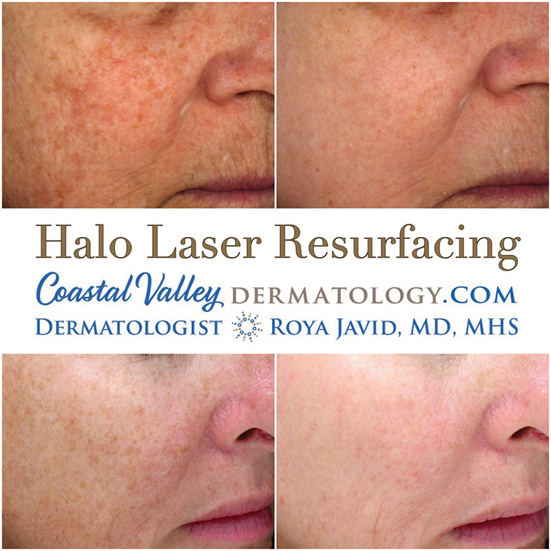 coastal-valley-dermatology-monterey-halo-laser-2-photo