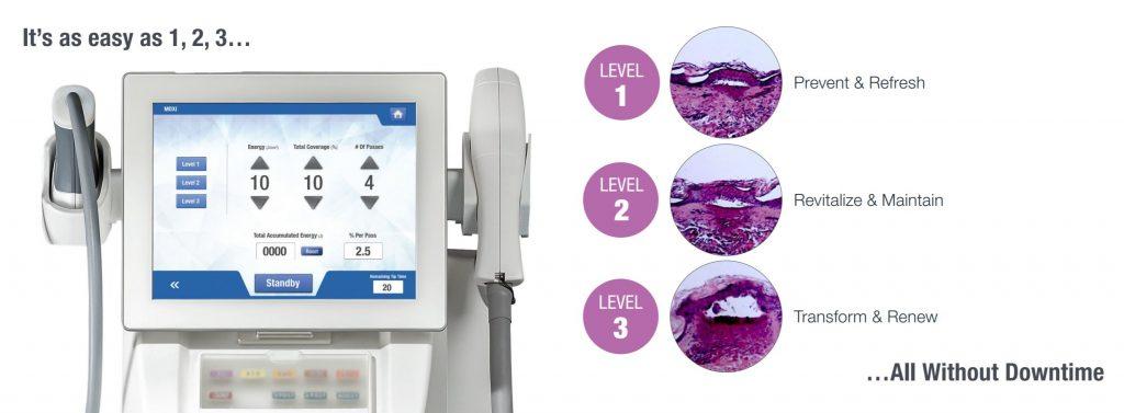 coastal-valley-dermatology-monterey-moxi-laser-no-downtime