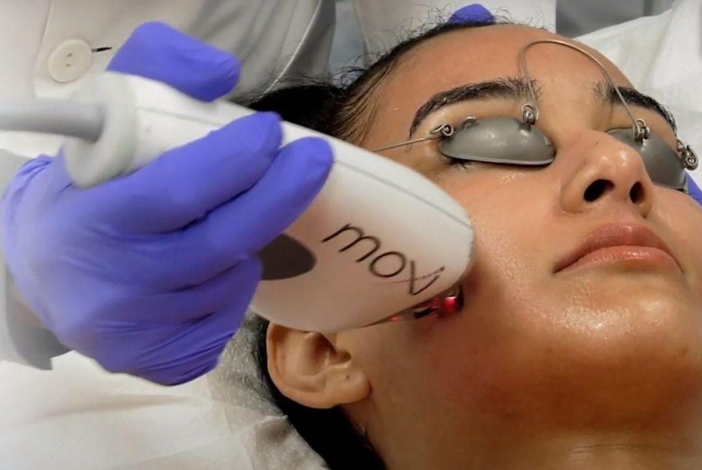 coastal-valley-dermatology-monterey-moxi-laser-treatment