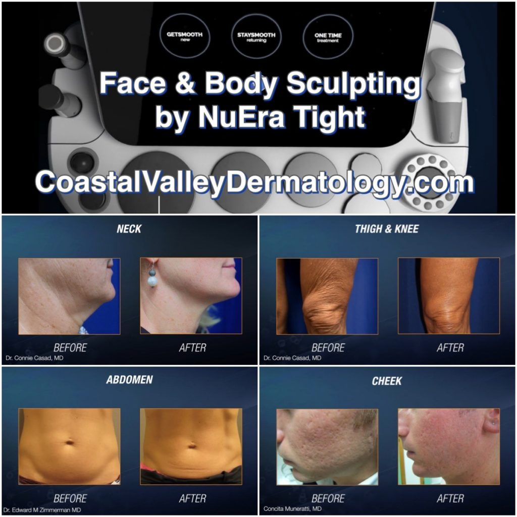 coastal-valley-dermatology-monterey-nuera-tight-before-after-pictures
