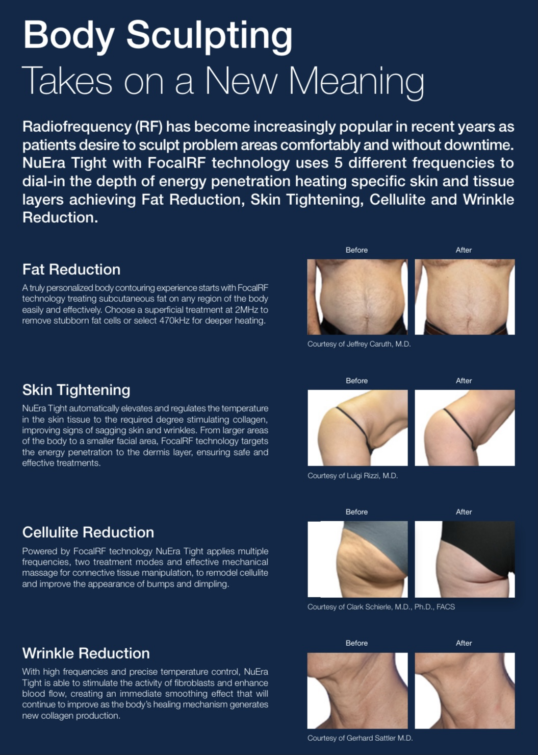 coastal-valley-dermatology-monterey-nuera-tight-before-after