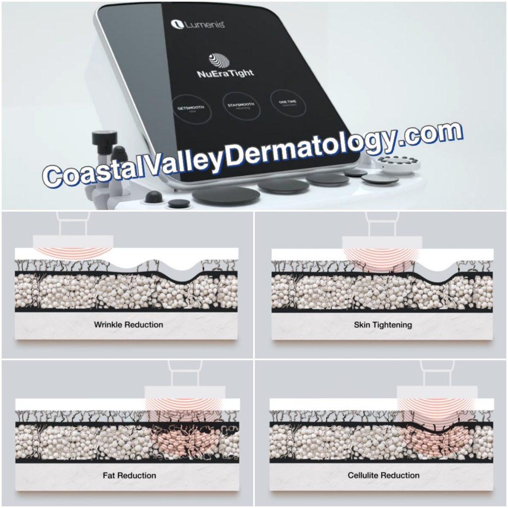 coastal-valley-dermatology-monterey-nuera-tight-skin-issues