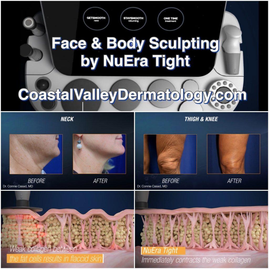 coastal-valley-dermatology-monterey-nuera-tight-skin-neck-knees